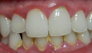 Cara Menghilangkan Plak Gigi Secara Tradisional